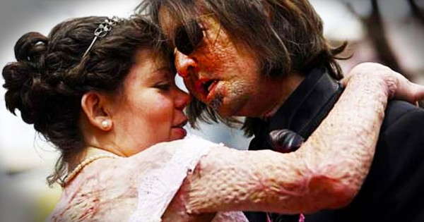 Nation's First Face Transplant Recipient Marries the Love of His Life – Another Burn Victim