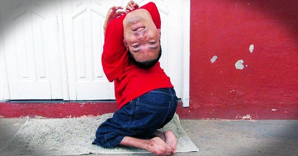 Man Born With Upside Down Head Inspires Millions