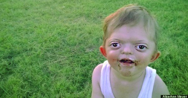 When People Saw This Little Angel, They Were Scared. Until His Mom Told Them THIS!