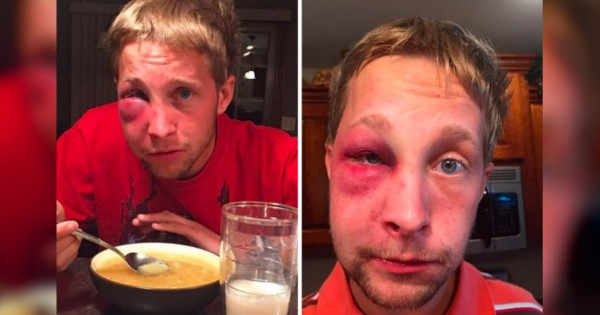 He Was Beat Up For Being 'Weird.' But How He Responded To His Bully…Amazing!
