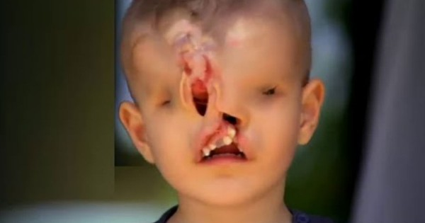 Stranger Funds Surgery For Boy With Deformed Face