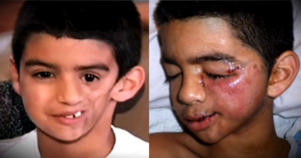 Young Boy's Face Started Melting But He Knew God Had A Plan For Him