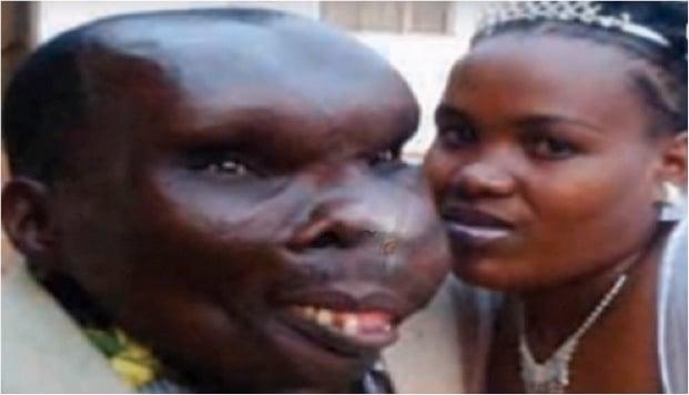Inspiring Story of 'Uganda's Ugliest Man' | Married + 8 Kids