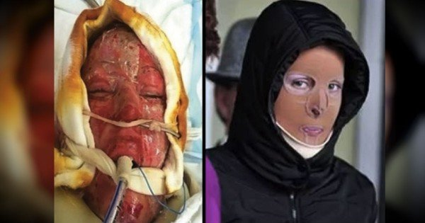 Woman's Miraculous Recovery After Being Set On Fire In A Fit Of Jealousy
