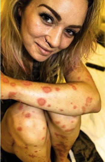 mj-godupdates-girl-bares-psoriasis-4