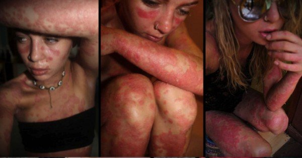 People Stare At Her Rash Covered Body, But She's Not Covering Up Anymore