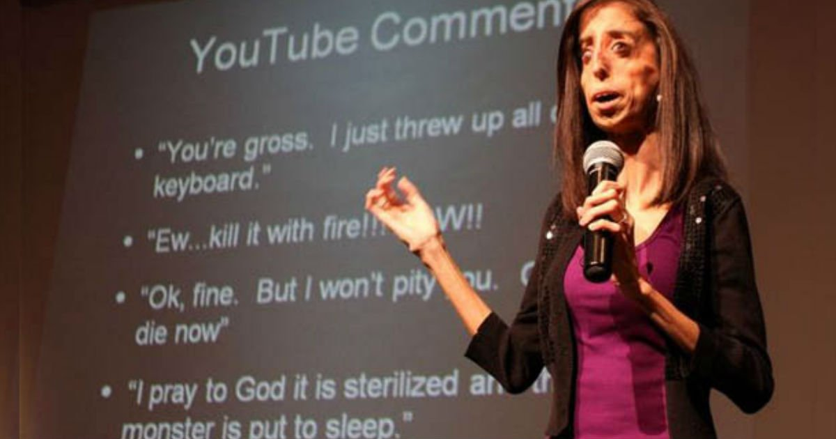 """ugliest woman alive"" lizzie velasquez thanks bullies"