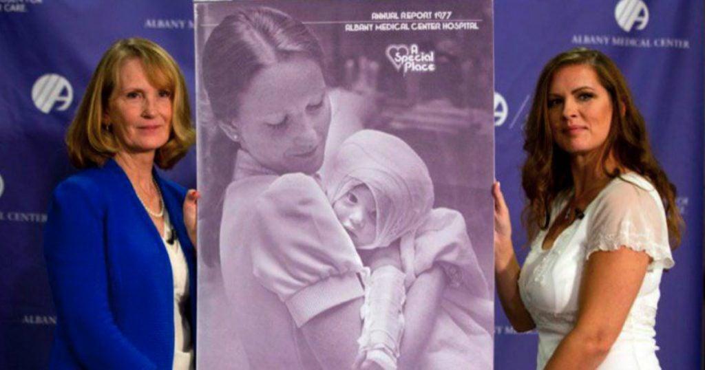 godupdates burned baby reunited nurse 4