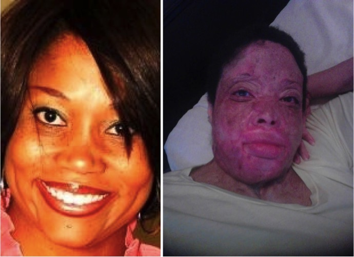 mj-godupdates-christy-sims-abuse-acid-thrown-on-face-2