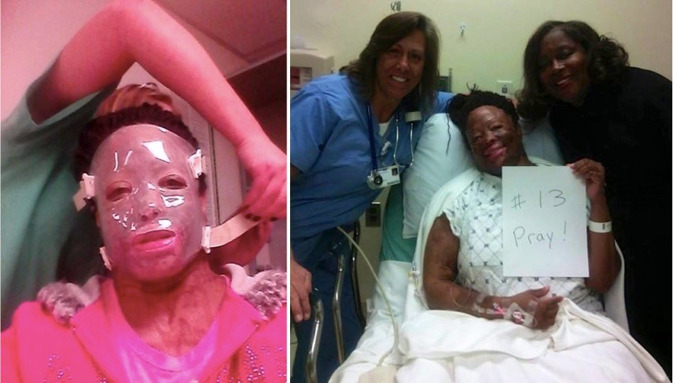 mj-godupdates-christy-sims-abuse-acid-thrown-on-face-3