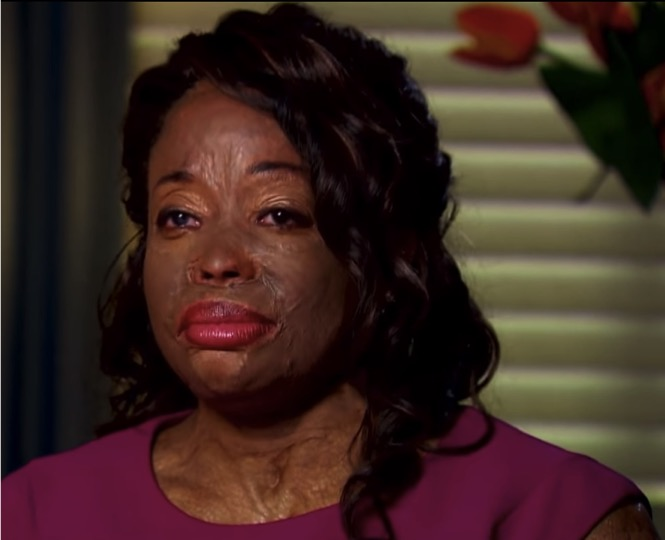 mj-godupdates-christy-sims-abuse-acid-thrown-on-face-4