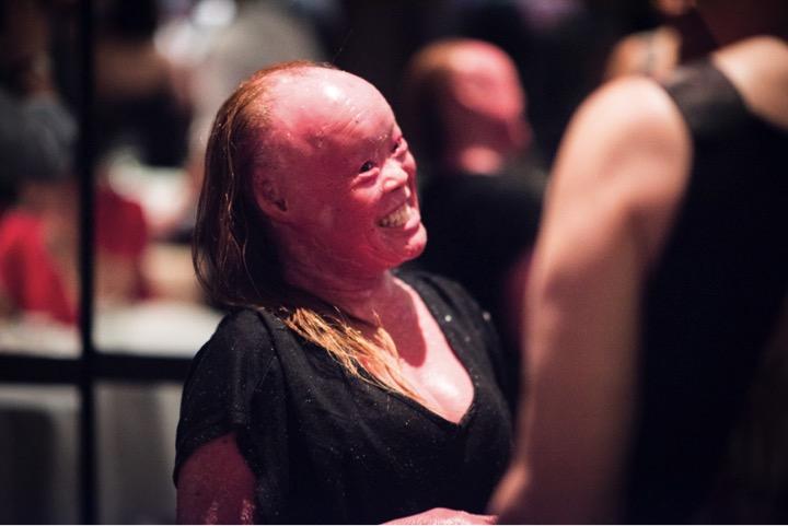 mj-godupdates-mui-thomas-skin-disorder-6