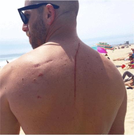 mj-godupdates-shark-attack-saves-mans-life-2