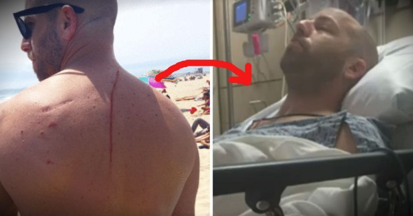 Shark Attack Turns Out To Be A Blessing When Doctors Find Tumor