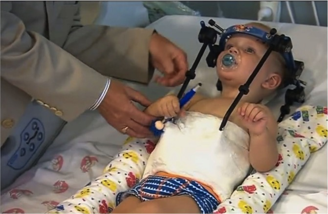 mj-godupdates-toddler-survives-miracle-surgery-after-decapitation-3