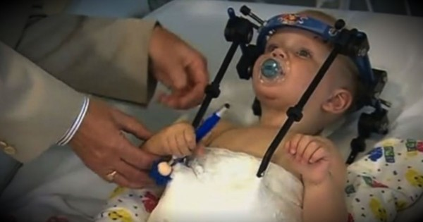 This Little Boy Survived The Unthinkable And Is A Living Miracle!