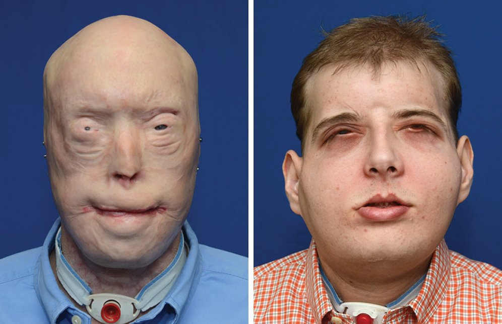 face-transplant-before-after