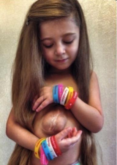 mj-godupates-2-miracle-girls-born-w-heart-outside-chest-meet-2