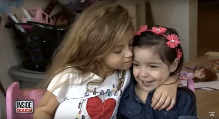 mj-godupates-2-miracle-girls-born-w-heart-outside-chest-meet-8