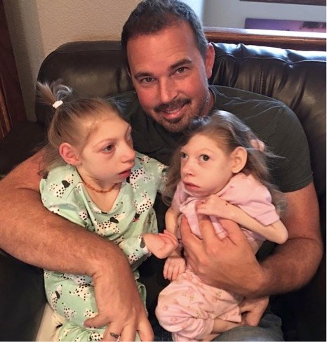mj-godupdates-2-sisters-claire-lola-with-rare-disorder-2