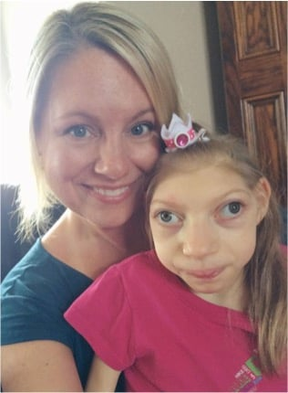 mj-godupdates-2-sisters-claire-lola-with-rare-disorder-4