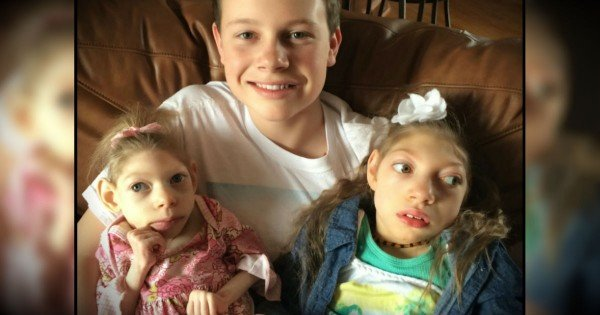 Inspiring Family Knows Their 2 Girls With Same Rare Disorder Are Miracles