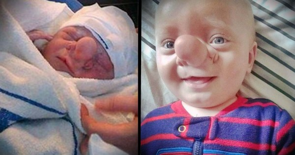 Bullies Call Boy With Brain Growing Into His Nose Ugly, But Mom Says He's Perfect