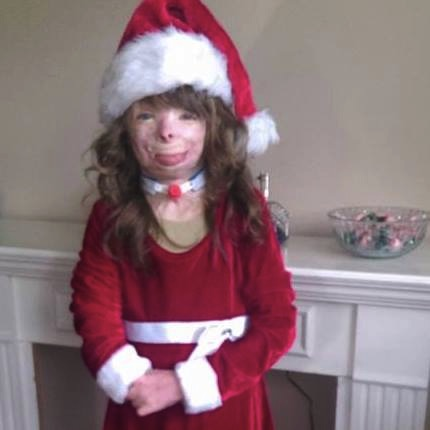mj-godupdates-burned-orphan-wishes-for-christmas-cards-1