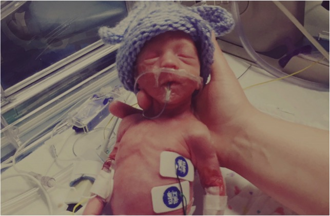 Mom Refuses To Abort Baby Expected To Die Or Be Disabled