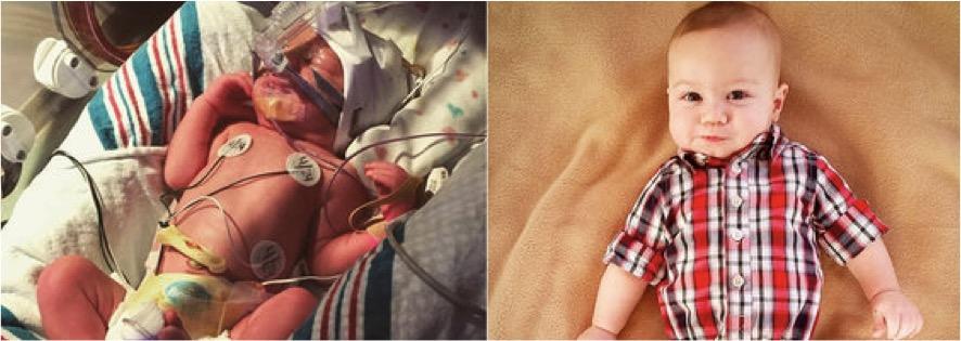 godupdates huffpo seeing preemie babies now 13