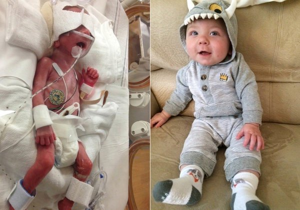 godupdates huffpo seeing preemie babies now 2