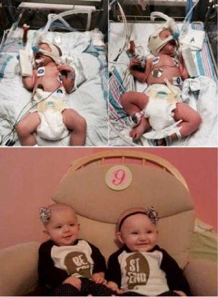 godupdates huffpo seeing preemie babies now 3