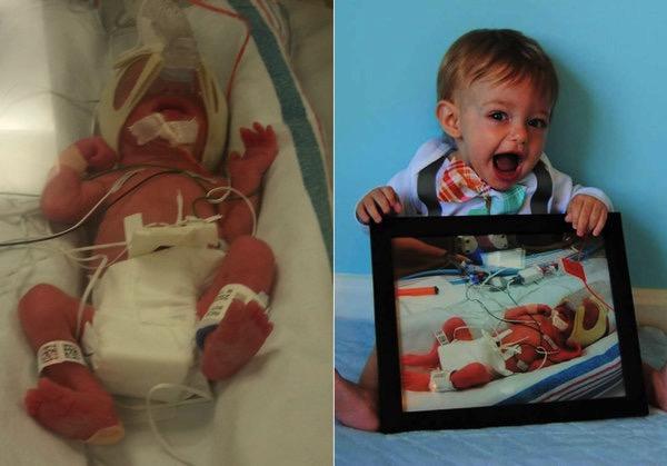 godupdates huffpo seeing preemie babies now 9