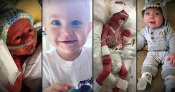 14 Photos Of Preemie Babies Who Defied The Odds