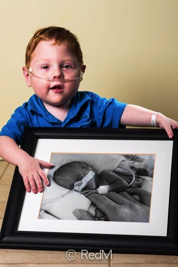 Seeing These Premature Babies Today Remind Us Miracles Do Exist