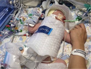 godupdates doctors put baby into a freezer bag to save him 2