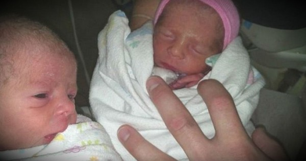 Mom Who Didn't Know She Was Pregnant Delivers Rare Set Of Twins