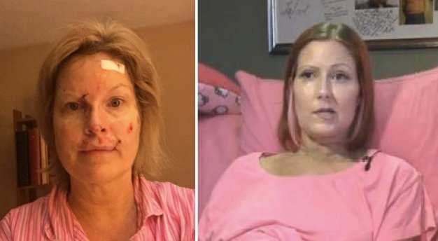godupdates skin cancer tanning bed warning ashley trenner and judy cloud 1