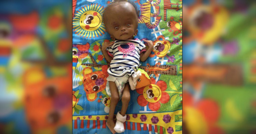 godupdates young woman adopts unwanted baby from haiti doctors said would die 3
