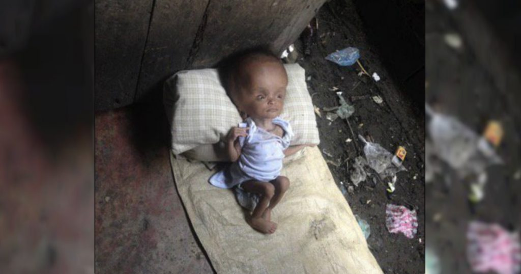 godupdates young woman adopts unwanted baby from haiti doctors said would die 5