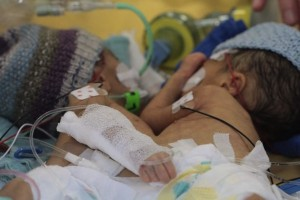 godupdates 8-day-old conjoined twins youngest to survive separation 1