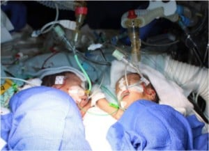 godupdates 8-day-old conjoined twins youngest to survive separation 4