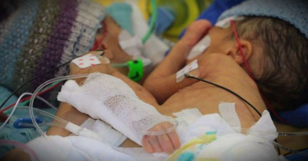 8-Day-Old Conjoined Twins Are Youngest Ever To Be Separated