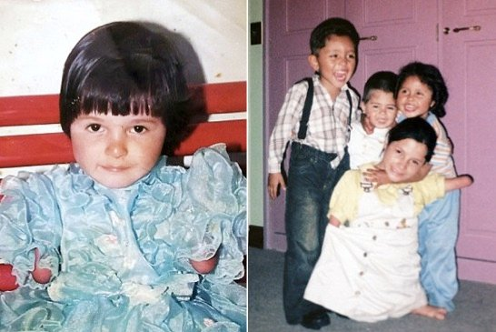 godupdates zuly sanguino girl born without arms or legs 3