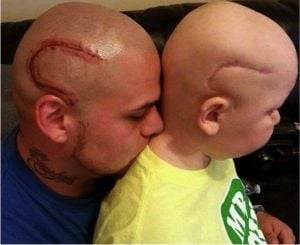 godupdates dad gets tattoo to match son's cancer surgery scar 4