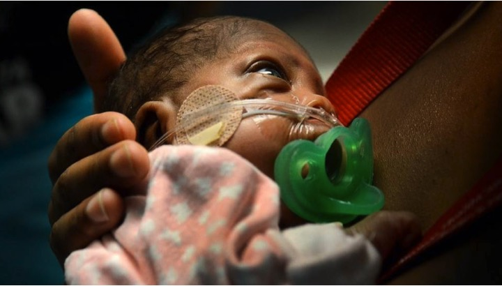 godupdates smallest baby born 14 weeks early 10 ounces goes home 6