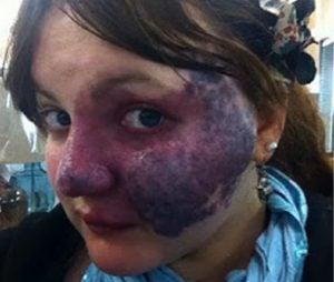 godupdates bullies turn her purple birthmark into cruel meme 7