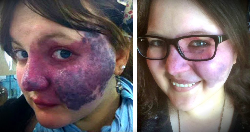 godupdates bullies turn her purple birthmark into cruel meme fb