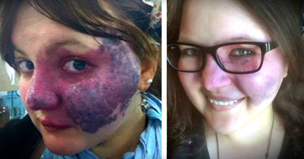 Brave Woman Uses The Birthmark Bullies Targeted To Inspire Others