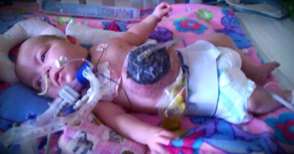 Nurse Adopted Abandoned Baby With Rare Birth Defect